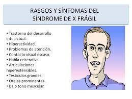 Resultado de imagen de síndrome x frágil