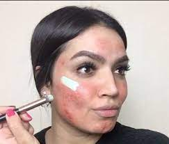 makeup tutorial for covering up acne