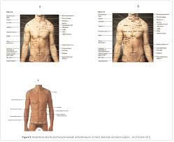 Anatomical Sites For Practicing Wet Cupping Therapy Al