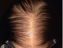 Female Pattern Hair Loss New Female Pattern Hair Loss DermNet New Zealand