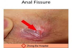 pain relief for anal fissure
