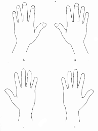 Hand Body Chart Clinical Practice Guidelines Child Abuse Diagrams