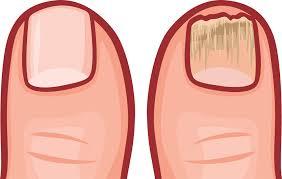 can vicks vaporub help treat toenail fungus home remes toenail fungus