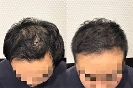 頭頂部の薄毛に悩む20代男性カットで薄毛が目立たない髪形に大変身