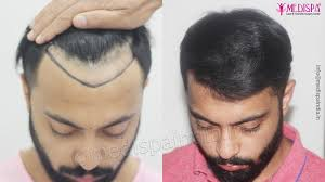 hair transplant clinic in india
