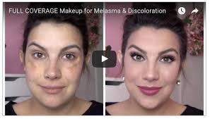 melasma tutorials on you melasma makeup tutorials