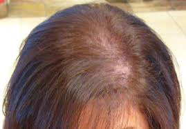 Female Pattern Hair Loss Interesting The Scourge Of Female Pattern Baldness HIS Hair Clinic