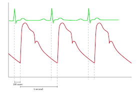 Narrow Pulse Pressure Chart Normal Arterial Line Waveforms Deranged Physiology