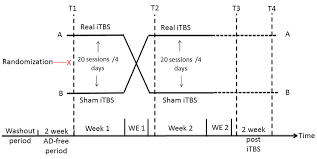 Antidepressant Washout Chart Flow Chart Of The Experimental Itbs Treatment Procedure