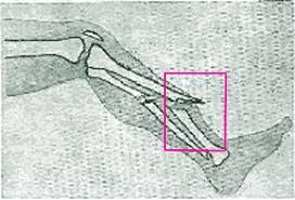 Открытые переломы Первая помощь при открытых переломах