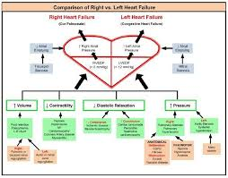 Right Vs Left Sided Heart Failure Chart Right Vs Left Heart Failure Left Sided Heart Failure