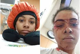 Hospital Security Guard Woman Was Struck By Depaul Hospital Security Guard Then Charged