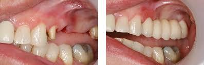Stephen Emms Dentist | Dental Implants Doncaster | NHS Dentist ...