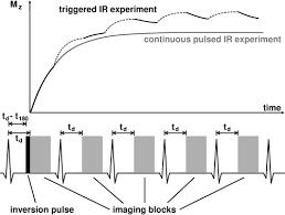 Myocardial <b>T1</b>: Quantification by Using an <b>ECG</b>-triggered Radial ...