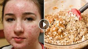 4 diy homemade acne face masks how to get rid of acne acne scars fast