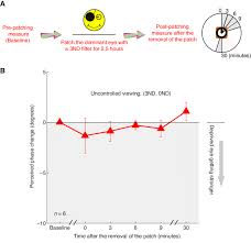 Eye Dominance Chart The Effects Of Monocular 3nd Luminance Deprivation Under An
