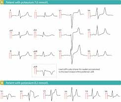 Ecg Changes Due To Electrolyte Imbalance Disorder Ecg