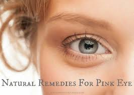 5 natural remes for pink eye