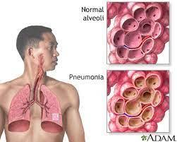 pneumonia in s discharge