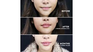 juvederm cost side effects and risks