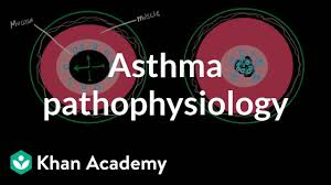 Asthma Pathophysiology Flow Chart Asthma Pathophysiology Video Asthma Khan Academy