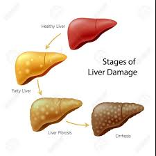 liver disease can be reversible by