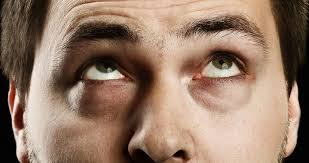 under eye fillers auckland tear