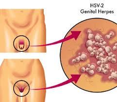 Ways to Treat Genital Herpes Naturally   wikiHow HSVOutbreak