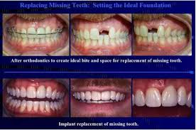 teeth setting replacement of missing teeth in patia bhubaneswar the parthas