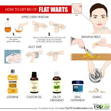 how to get rid of flat warts top 10