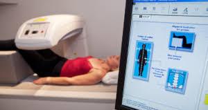Bone Density Test Osteoporosis Screening T Score