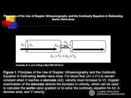 echo aortic valve area continuity equation tessshlo