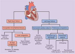 Right Vs Left Sided Heart Failure Chart Right Versus Left Sided Heart Failure Cardiac Nursing