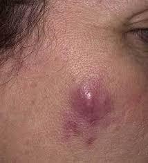 Folliculitis - Dermatology - Medbullets Step 2/3