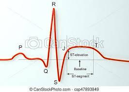 Ecg Chart Labeled Ecg In Myocardial Infarction Illustration Showing St Elevation Labeled Image