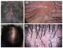 hair loss clinical manifestations