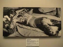 Bildresultat för missbildningar efter atombomben 1945