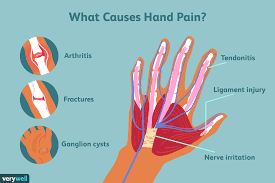 Hand Pain Causes Treatment And When To See A Doctor