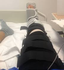A Spill at Parsenn Bowl  Knee Injury and Recovery   Case Study       Bupa UK Below and outline of the course   look out for future blog posts reviewing  future weeks as I move on to them