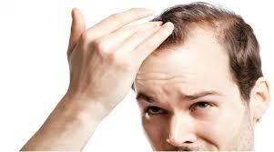Resultado de imagem para queda cabelo