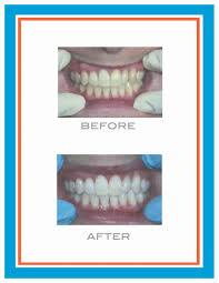 full size of teeth bleaching zoom home teeth whitening wonderful zoom home teeth whitening zoom