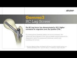 stryker trauma extremities fem nailing gamma3 rc lag