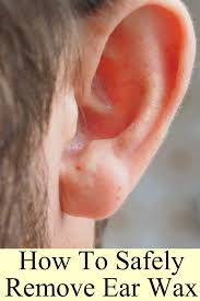 how to safely remove ear wax these self care measures may help you remove