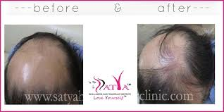 synthetic hair transplant test patch 100 biofibre