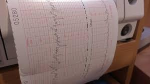 Doppler Ultrasound Investigation Chart Evaluation Pregnant