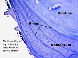 Aging Analysis Cementum Aging Matsons Laboratory