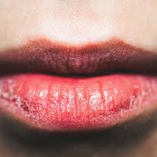 dry skin on lips