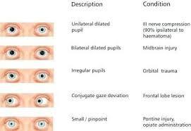 Eyes On Drugs Chart Pin On Medic