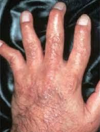 乾癬 性 関節炎