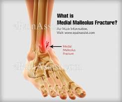 Medial Malleolus Fracture Causes Symptoms Treatment Recovery